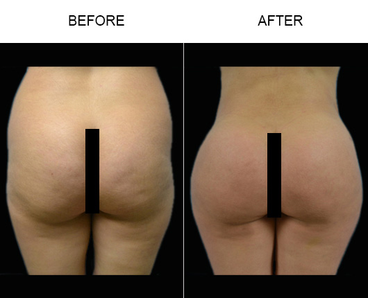 Florida Brazilian Butt Lift Treatment Results