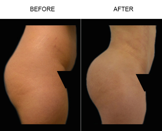 FL Brazilian Butt Lift Before And After