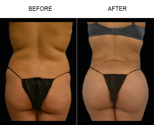 Brazilian Butt Augmentation Before And After
