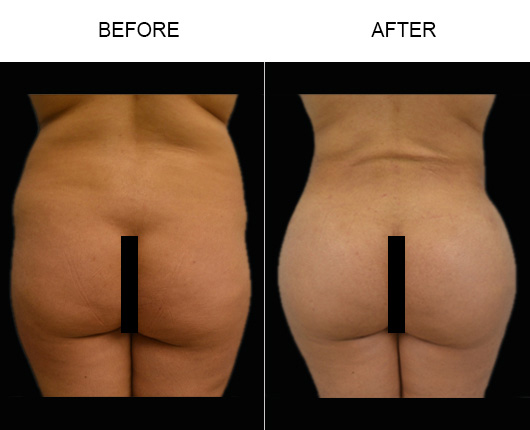 Brazilian Butt Augmentation Before & After