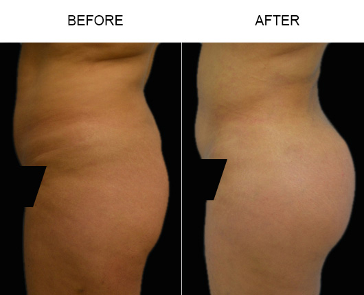 Before And After Brazilian Butt Augmentation