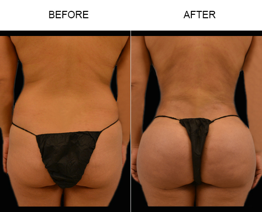 Before & After Brazilian Butt Augmentation