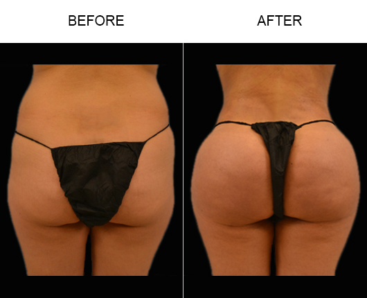 Brazilian Butt Augmentation Results