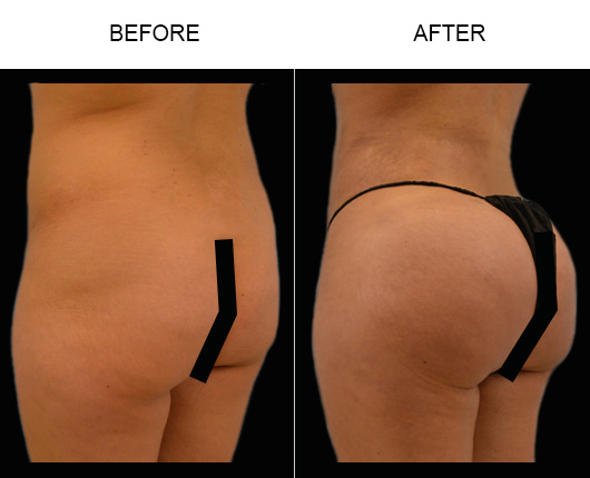Brazilian Butt Augmentation Surgery Before & After
