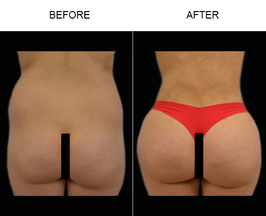 Before & After Brazilian Butt Augmentation Surgery