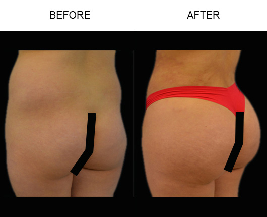 Brazilian Butt Augmentation Surgery Results