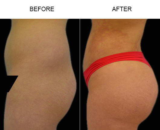 Brazilian Butt Augmentation Treatment Results