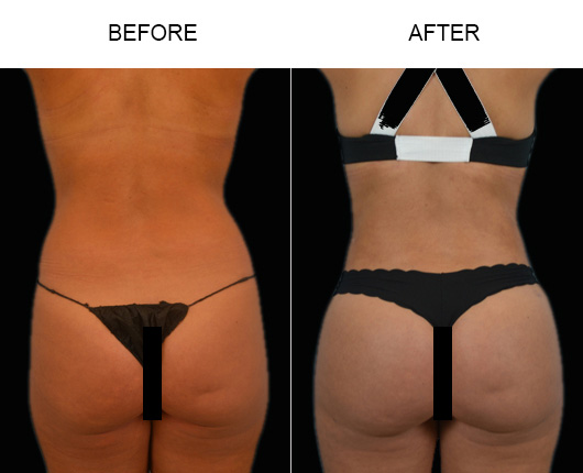 Florida Brazilian Butt Augmentation Before & After
