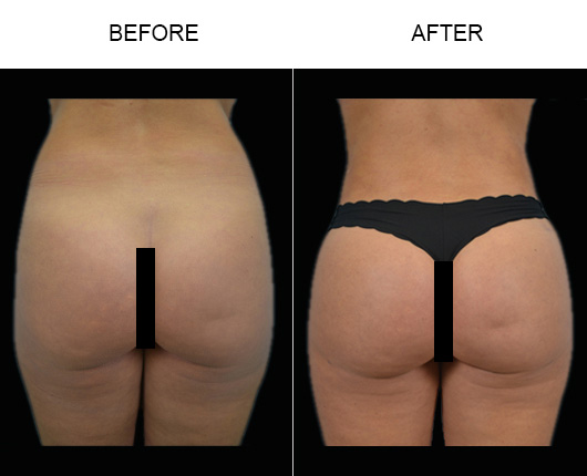Florida Brazilian Butt Augmentation Results