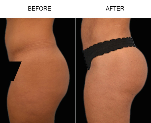 FL Brazilian Butt Augmentation Before And After