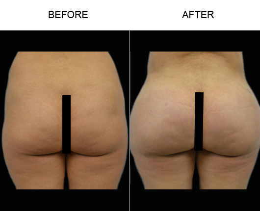 FL Brazilian Butt Augmentation Before & After