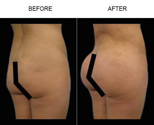 Before And After Brazilian Butt Augmentation In FL