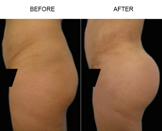 Before & After Brazilian Butt Augmentation In FL