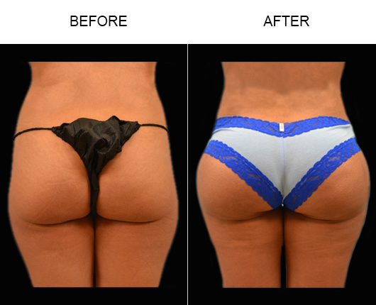 FL Brazilian Butt Augmentation Results