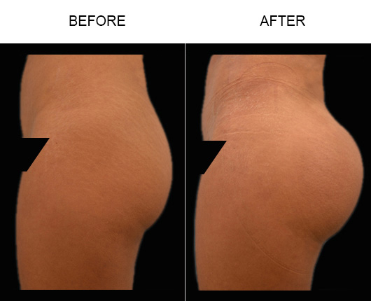 FL Brazilian Butt Augmentation Surgery Results