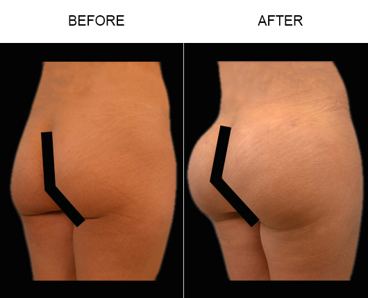 FL Brazilian Butt Augmentation Treatment Results