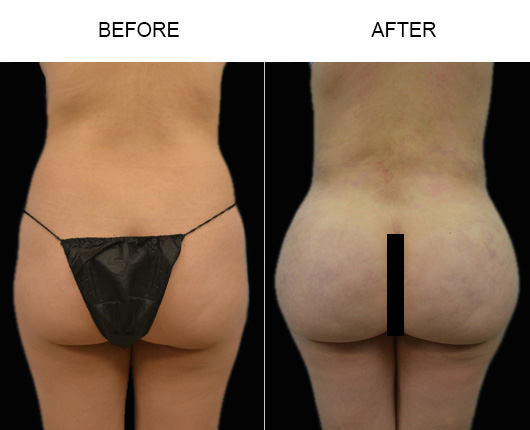 Brazilian Butt Lift Surgery Before And After In Florida