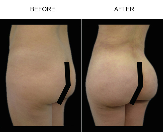 Brazilian Butt Lift Surgery Before & After In Florida