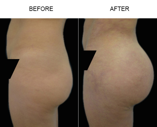 Before And After Brazilian Butt Lift Surgery In Florida