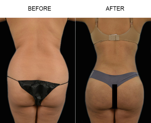 Before & After Brazilian Butt Lift Surgery In Florida