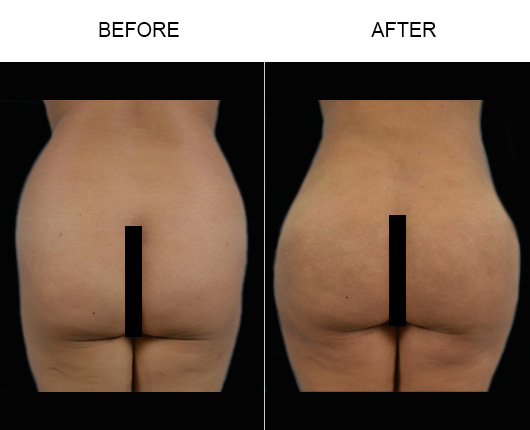 Brazilian Butt Lift Treatment Before And After In Florida