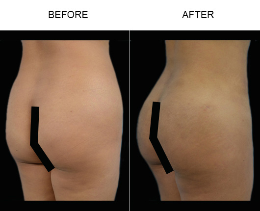 Brazilian Butt Lift Treatment Before & After In Florida