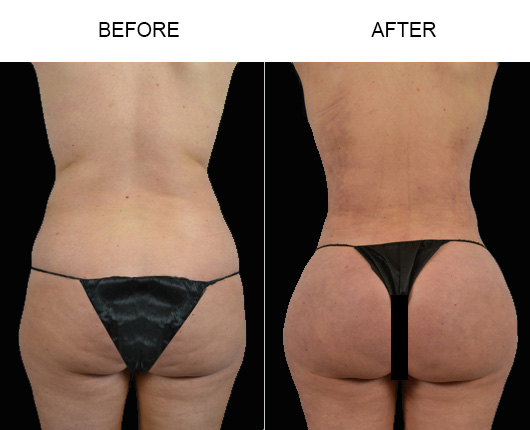 Before And After Brazilian Butt Lift Treatment In Florida