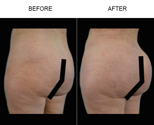 Before & After Brazilian Butt Lift Treatment In Florida