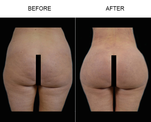 Brazilian Butt Augmentation Surgery Before And After