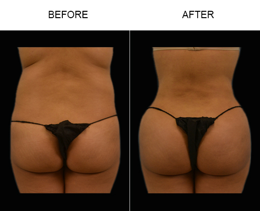 Before And After Brazilian Butt Augmentation Surgery