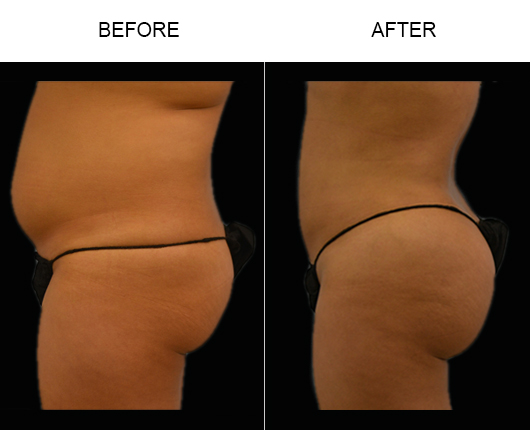 Brazilian Butt Augmentation Treatment Before And After