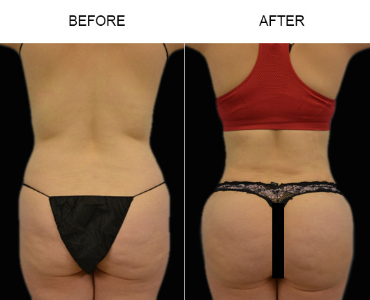 Brazilian Butt Augmentation Treatment Before & After