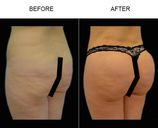 Before And After Brazilian Butt Augmentation Treatment