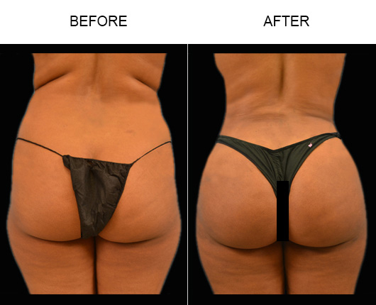 Before & After Brazilian Butt Augmentation Treatment