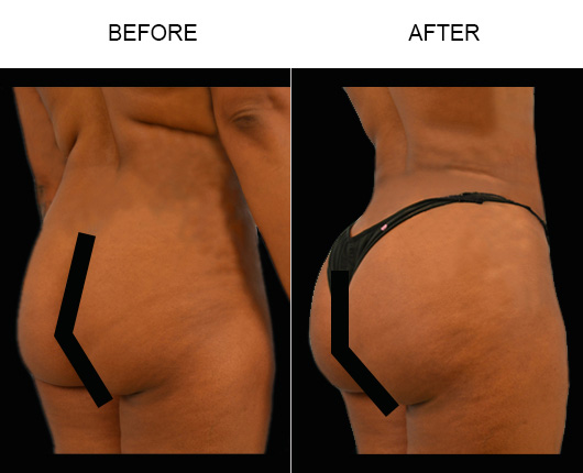Florida Brazilian Butt Augmentation Before And After