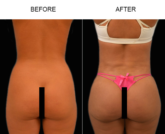 Before And After Brazilian Butt Augmentation In Florida