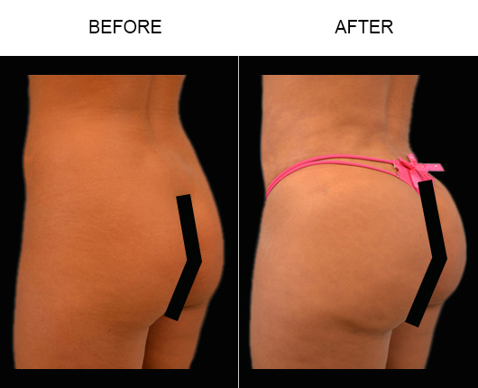 Before & After Brazilian Butt Augmentation In Florida