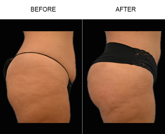 Brazilian Butt Augmentation Surgery Before & After In Florida