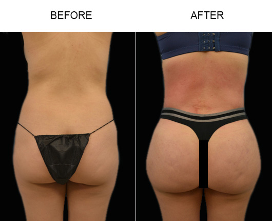 Before And After Brazilian Butt Augmentation Surgery In Florida