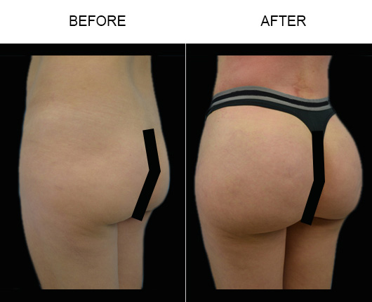 Before & After Brazilian Butt Augmentation Surgery In Florida