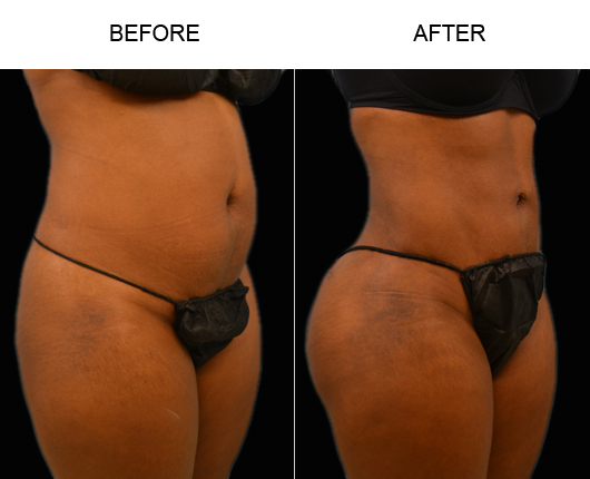 Florida Brazilian Butt Augmentation Surgery Results
