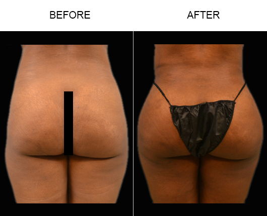 Brazilian Butt Augmentation Treatment Before And After In Florida
