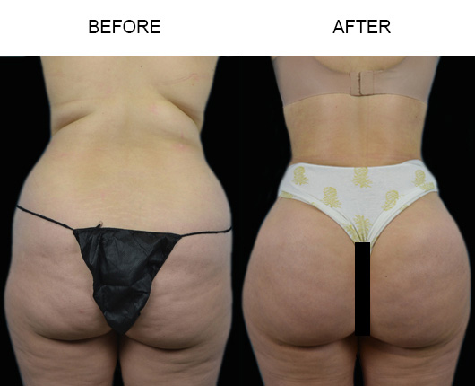 Brazilian Butt Augmentation Treatment Before & After In Florida
