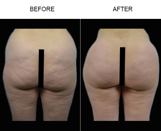 Before And After Brazilian Butt Augmentation Treatment In Florida