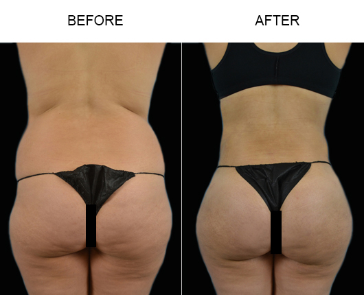 Before & After Brazilian Butt Augmentation Treatment In Florida
