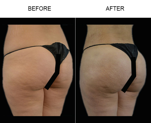Florida Brazilian Butt Augmentation Treatment Results