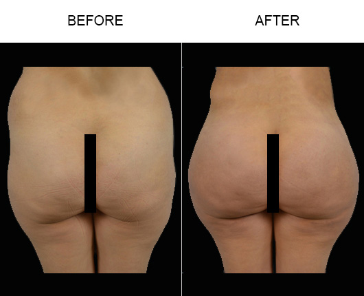 Brazilian Butt Augmentation Surgery Before And After In FL