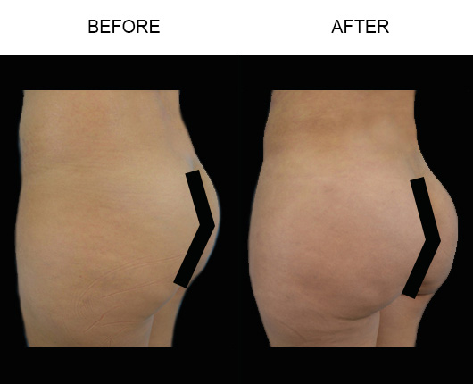 Brazilian Butt Augmentation Surgery Before & After In FL