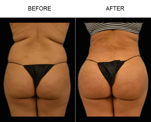 Before And After Brazilian Butt Augmentation Surgery In FL
