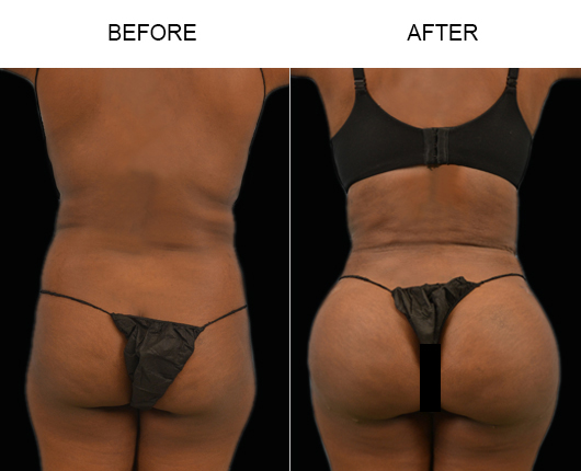 Brazilian Butt Augmentation Treatment Before And After In FL